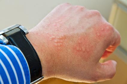 Woran erkennt man eine Waschmittelallergie? Ursachen, Symptome, Behandlung und Alternativen